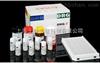 小鼠组蛋白H2b(histon-H2b)ELISA试剂盒