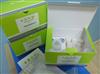 人波形蛋白(VIM)ELISA试剂盒,48T/96T